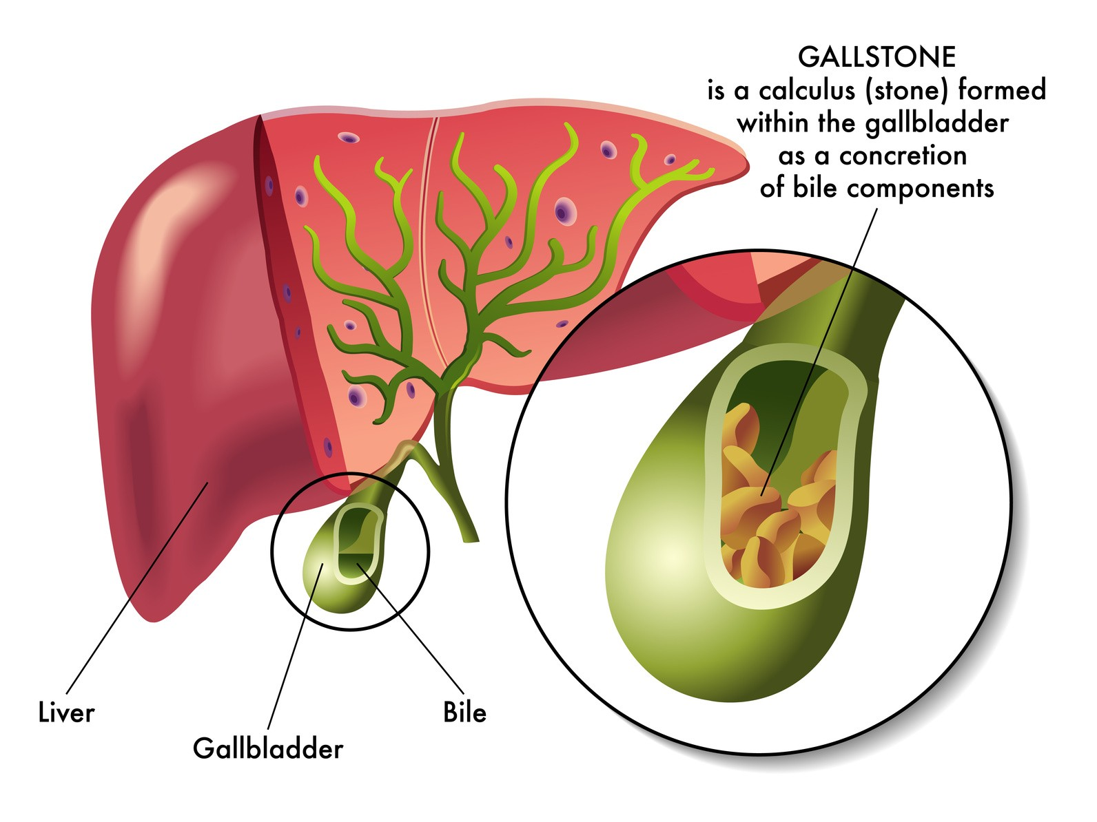 Westerville Surgical Specialists Gallbladder Removal